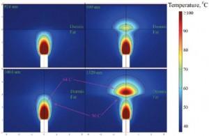 image007 300x195 Lipoliza laserowa   długości fal lasera SlimLipo